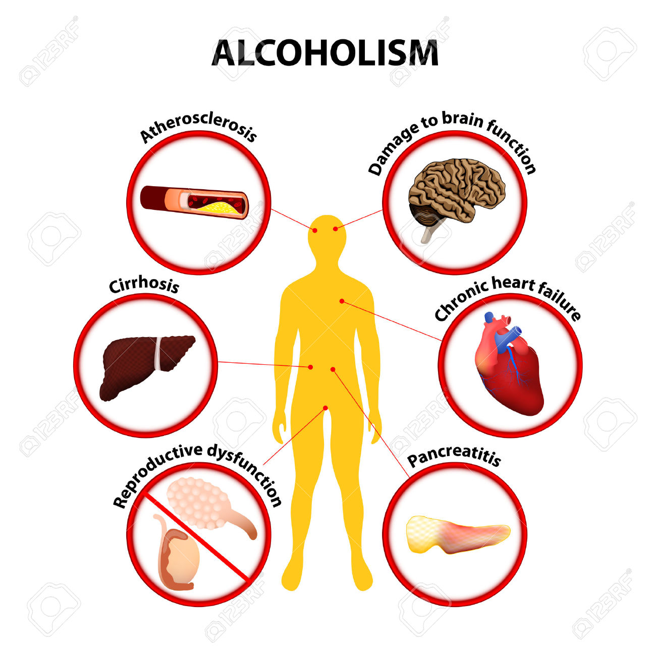 health disparities in alcohol use disorder This paper reviews recent advances in alcohol research related to ethnic group disparities in alcohol consumption, disorders, consequences, and treatment use, as well as factors that may account for the disproportionate impact of alcohol on some ethnic groups.