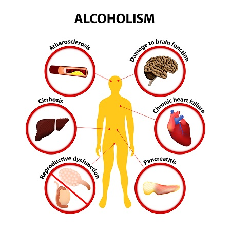 Alcoholism Health Problems: Atherosclerosis, Damage to brain function, Cirrhosis, Chronic heart failure, Reproductive dysfunction, Pancreatitis