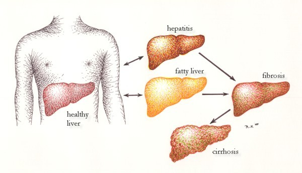The effects of alcohol on the liver