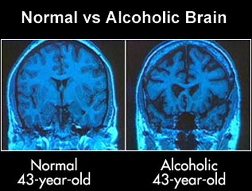 The effects of alcohol on the brain. Normal vs Alcoholic Brain.