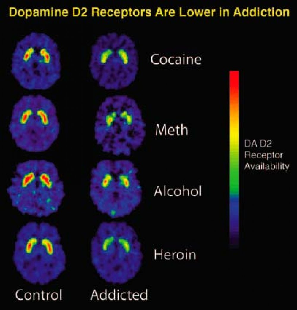 Addiction Brain Scans (Cocaine - Meth - Alcohol - Heroin)
