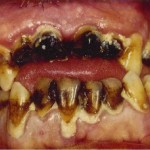 Methamphetamine effects of teeth 3