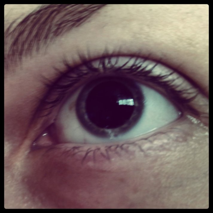 Pupil of the person after Metamphetaminum reception.
