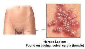 Genital Herpes Female